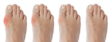 Rheumatology of the Foot