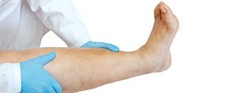 Vascular Assessment of the Lower Limb